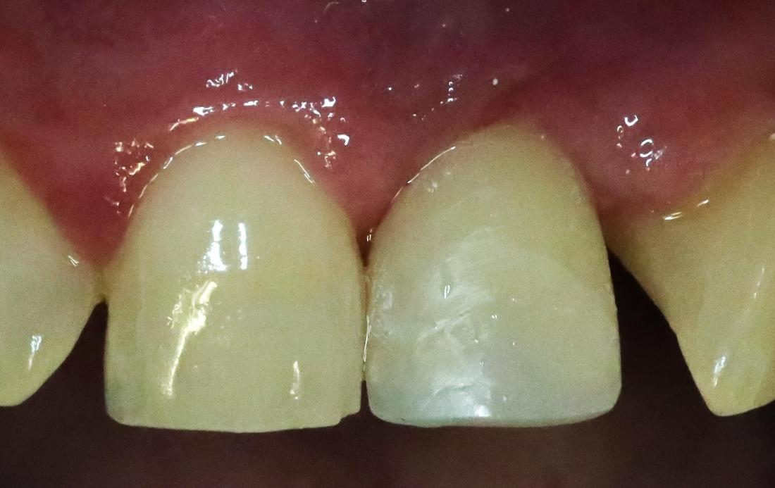 Front Tooth Implant w/ Temp Crown