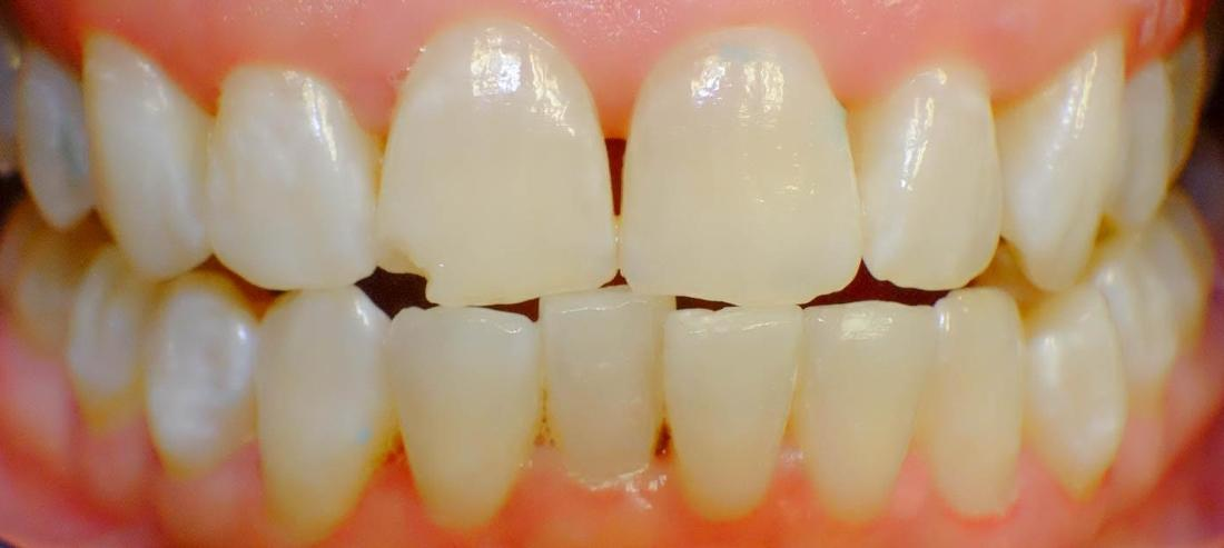Professional In-Office Teeth Whitening