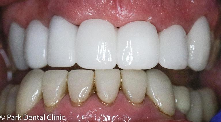 Complete-Front-Teeth-Make-Over-After-Image