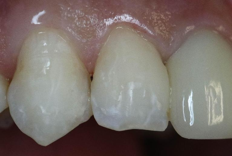 White-Spot-Removal-After-Image