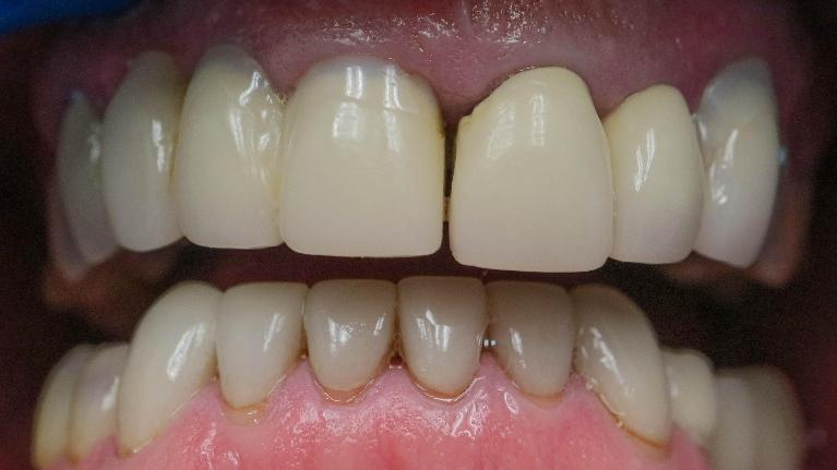 Complete-Front-Teeth-Make-Over-Before-Image
