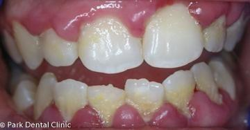 Gum-Treatment-Before-Image