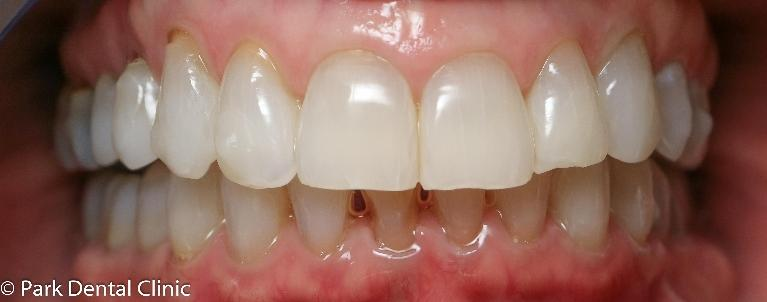 Long-patience-paid-off-Invisalign-After-Image