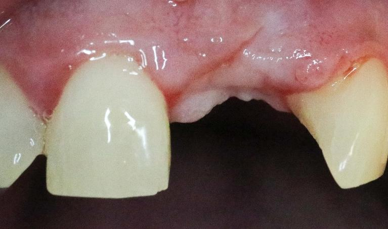 Front-Tooth-Implant-w-Temp-Crown-Before-Image