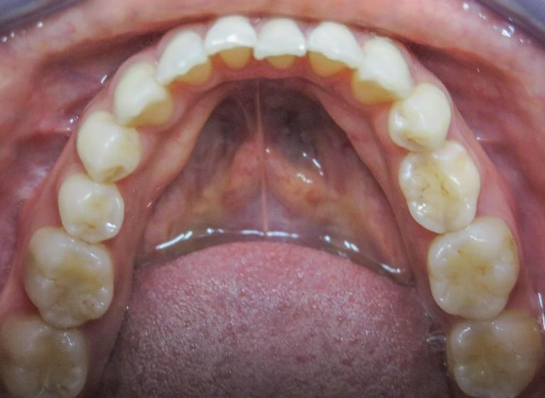 Invisalign-Ortho-Case-Before-Image