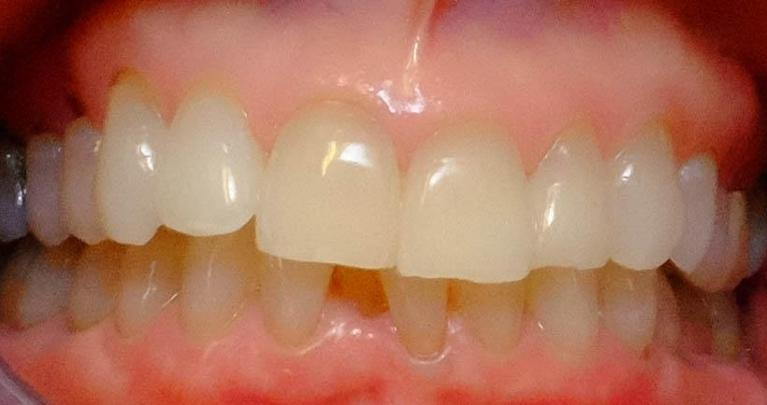 Long-patience-paid-off-Invisalign-Before-Image
